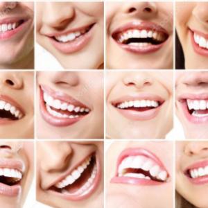 Cara Merawat Gigi Agar Tetap Sehat dan Kuat