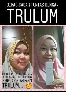 trulum serum synergy bekas cacar