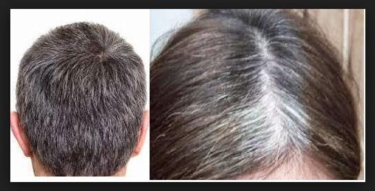 Beberapa Cara Alami Atasi Rambut Yang Beruban